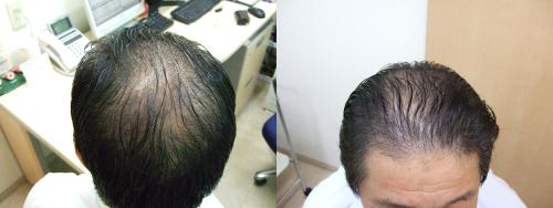 治療から6カ月後
