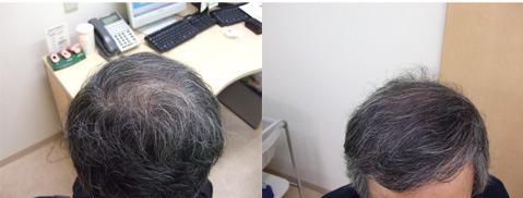 治療から1年2カ月後